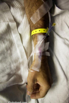 Medical picture of a mans arm with an intravenous line in it. Good background medical stock photo